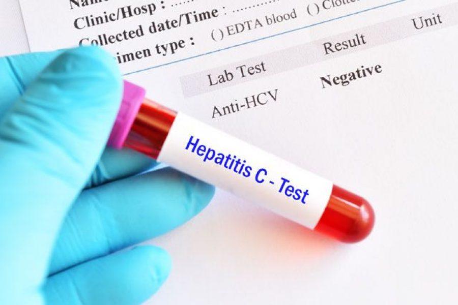 Перелік лікувальних закладів, де можна пройти лікування вірусного гепатиту С за кошти держбюджету